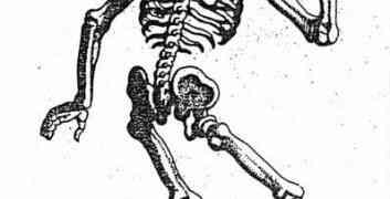 Wie viele Knochen hat der Mensch?